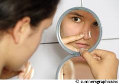 Soigner l'acné
